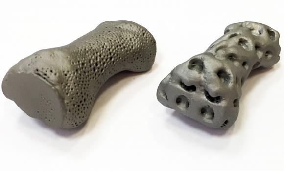 Szemelyre szabott implantatumok